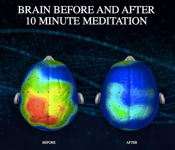 meditation_benefits