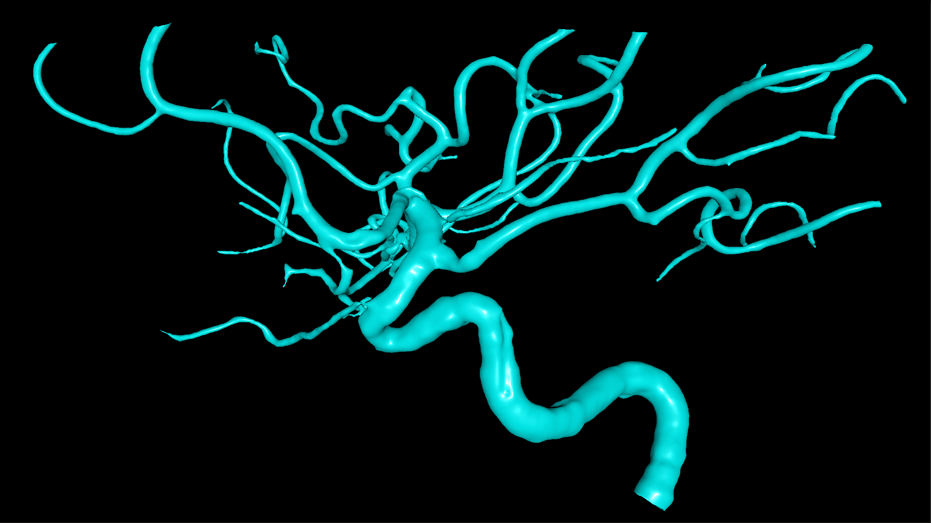 Automated anatomy reconstruction - We automatically build accurate 3D representation of the patient's blood vessel tree.