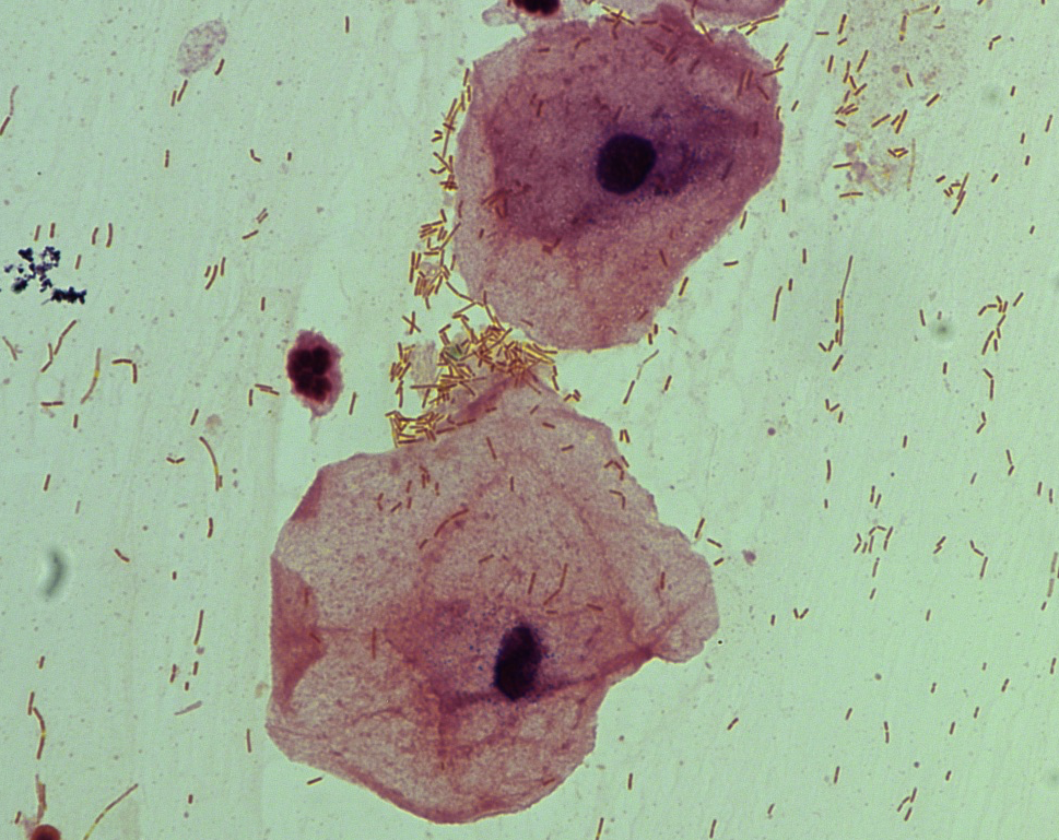 Gram_stain_VMB2.png