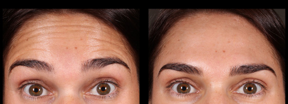 Before and after anti-wrinkle injections for forehead lines.  Treatment performed by Mike Clague Aeshetic nurse.    *All results shown on our website have been achieved by our team members. Please note that results are individual and may vary.