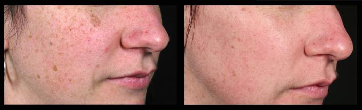 Fraxel Dual for sun spots & pigmentation