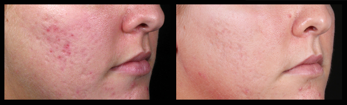 Fraxel Dual for acne scarring