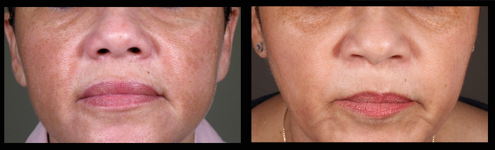 Light Skin Peels for pigmentation