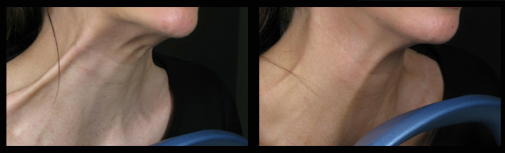 Muscle Relaxing Injections for neck bands