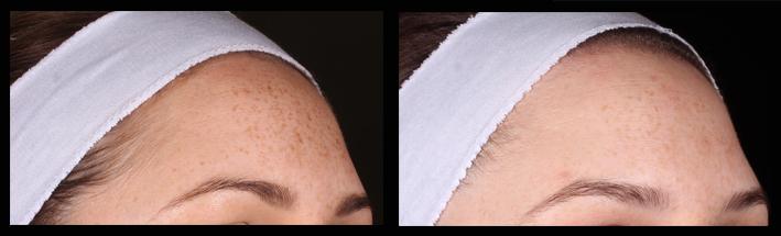 IPL for freckles