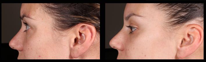 IPL for general skin improvement