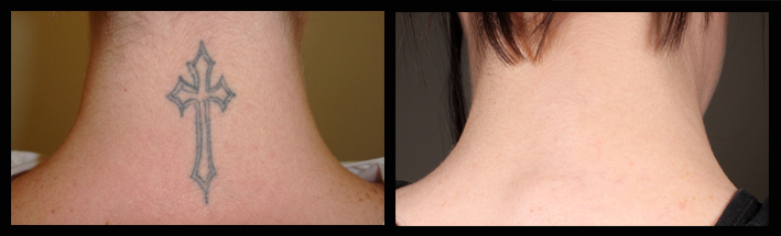 Q-Switched YAG Laser for tattoo removal