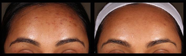 Skin Needling for acne scarring