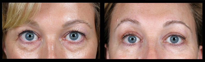 Blepharoplasty (Upper Eyelid Surgery)
