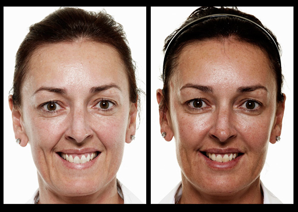 Dermal Fillers and    Muscle Relaxant Injections    for facial contouring, shaping and rejuvenation. Treatment performed by    Dr Stefania Roberts*