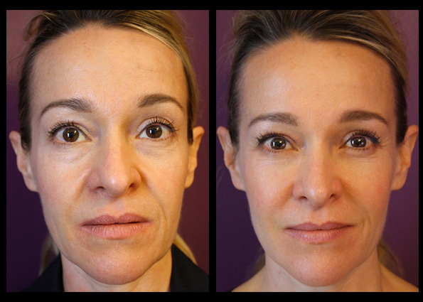 Dermal Fillers and    Muscle Relaxant Injections    for facial contouring, shaping and rejuvenation. Treatment performed by    Mike Clague   *