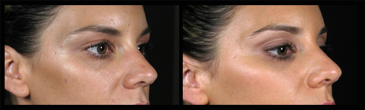 Dermal Fillers for brow and eye are enhancement