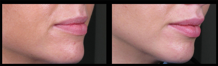 Dermal Fillers for lip enhancement