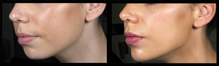 Dermal Filler for chin and cheek sculpting