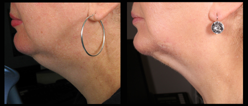 Mini Liposuction for under the neck