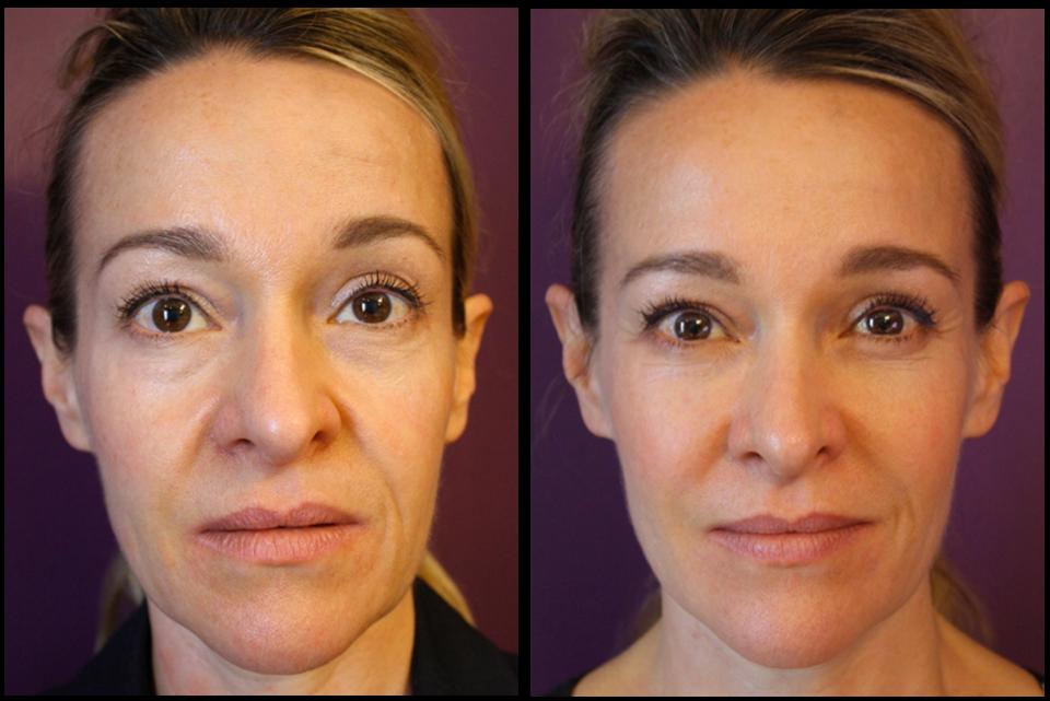 Full facial rejuvenation by Mike Clague (Aesthetic Nurse)