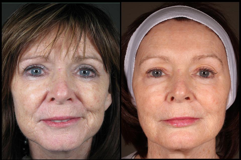 Full facial rejuvenation by Assoc Prof Greg Goodman & Melissa Daniell (RN)