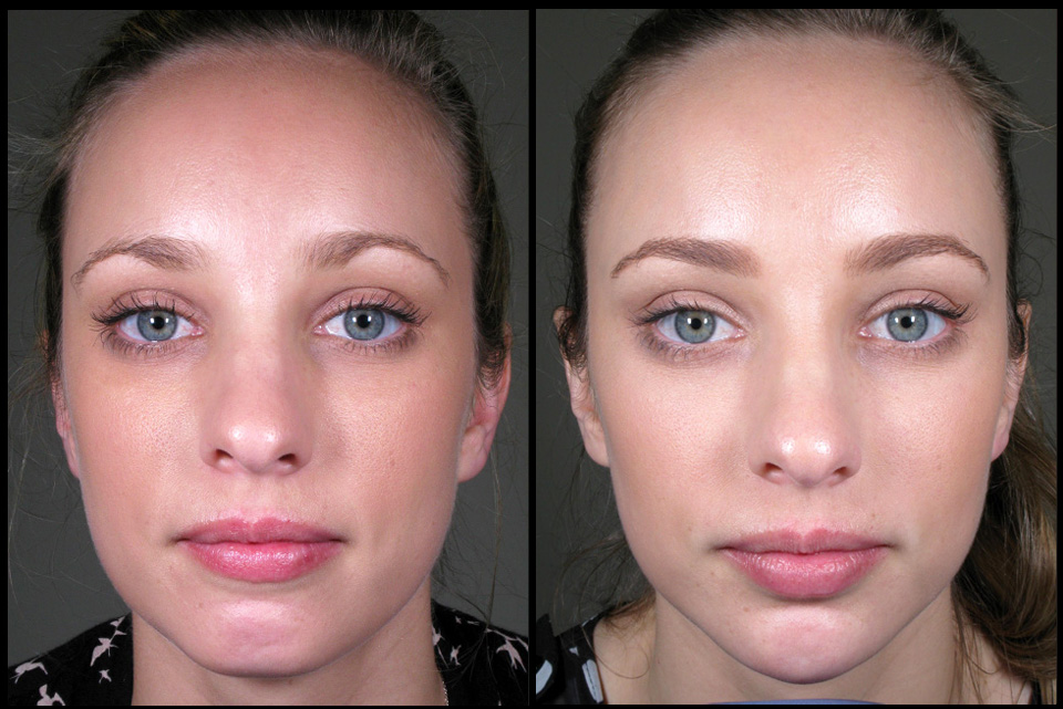 Facial shape enhancement (chin & cheeks) by Dr Lee-Mei Yap