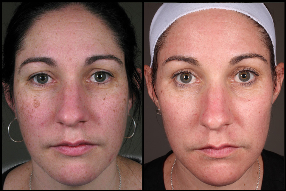 Treatment of pigmentation by Melissa Daniell (RN)