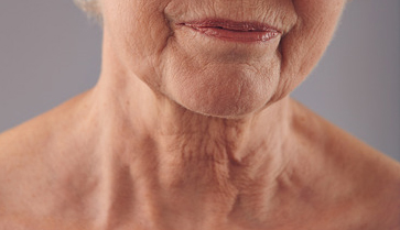 Skin tightening example