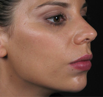 After dermal filler treatment Performed by Assoc. Prof. Greg Goodman