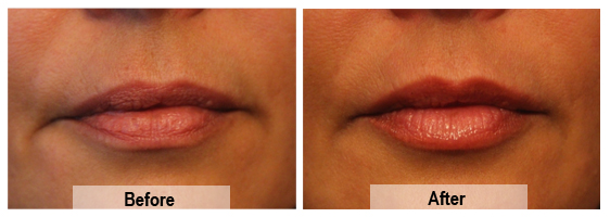 Lip enhancement performed by Mike Clague Aesthetic Nurse