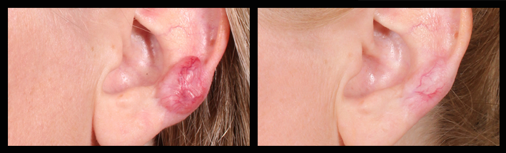 Prescription injections for keloid scarring