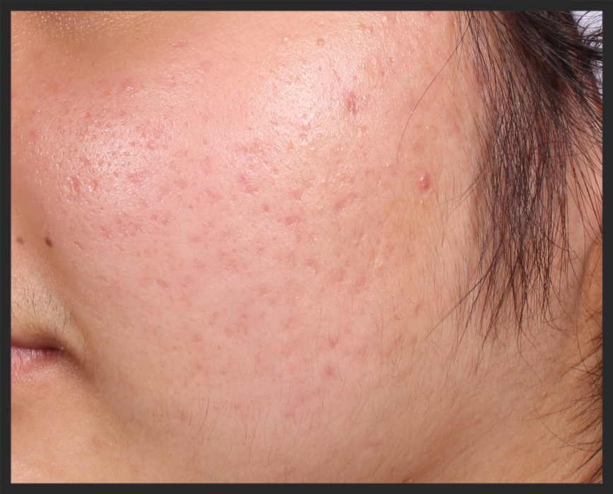 Patient with 'Mild' Grade 2 acne scarring