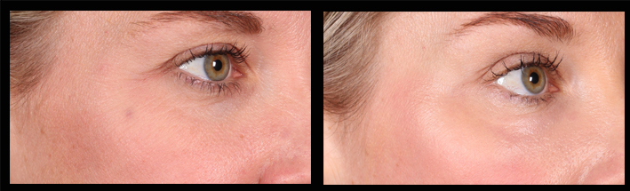 PSR for crows feet & wrinkles under the eyes
