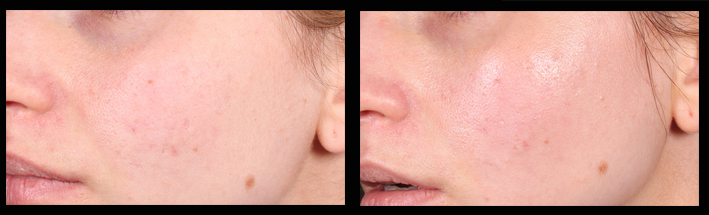 This patient was seeking general skin improvement, she had some very mild  acne scarring , slightly enlarged  pores  and mild discolouration. Procedural nurse  Tara Coetzer (RN)  used  skin needling  sessions in combination with  hydrafacia l to improve skin and return its glow.