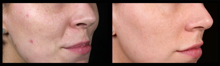 The patient was treated by  Kristin Campbell (RN) for mild  acne ,  pigmentation ,  enlarged pores  and  acne scarring  using a combination of  skin needling  and  light skin peels .