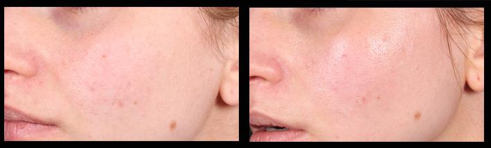 Skin Needling for general rejuvenation & mild acne scarring