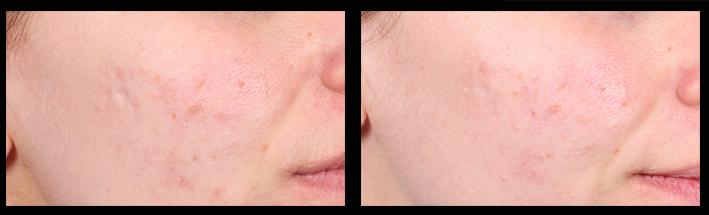 Skin Needling for general rejuvenation & acne scarring