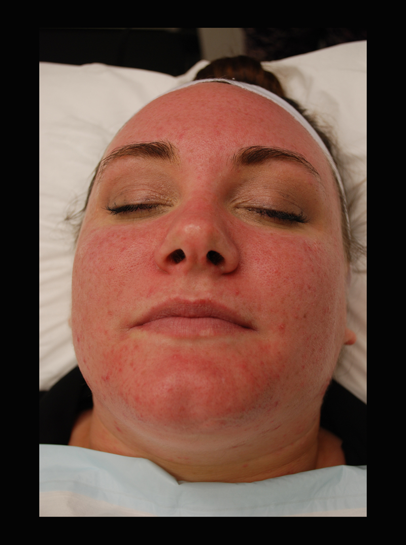Immediately after the treatment the patient can appear quite flushed - this usually reduces significantly in the hour after and is generally gone completely within 24 hours. Makeup can be applied immediately after treatment.