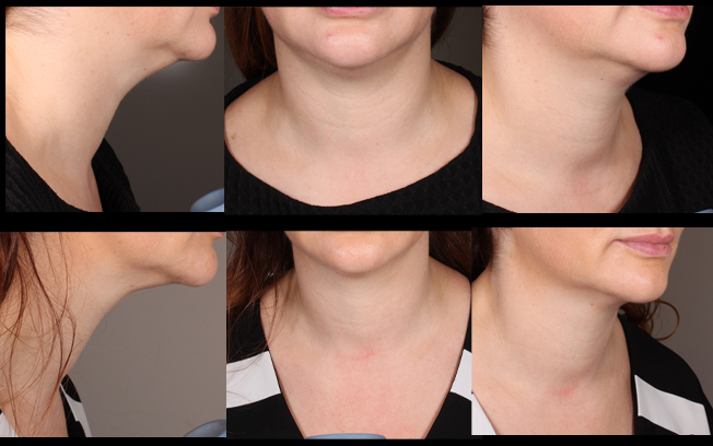 Neck tightening is performed using the Ultraformer III - The top row shows before Ultraformer III, the 2nd row shows 2 months after Ultraformer III - Ultraformer III benefits will peak between 6 and 9 months post treatment so we would expect continued improvement in this patient. Treatment performed by Katy Wallace RN.