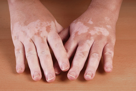 An example of colour loss in the skin caused by the disease Vitiligo