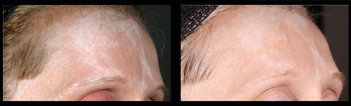 ReCell® is used to re-introduce colour to the forehead. Treatment performed by Assoc Prof Greg Goodman.