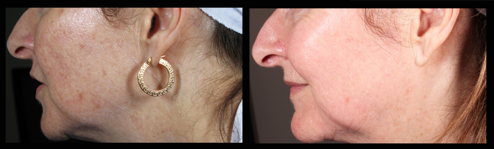 Fraxel Dual for brown spots