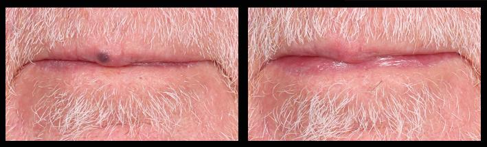 Vascular Laser for lip lesion