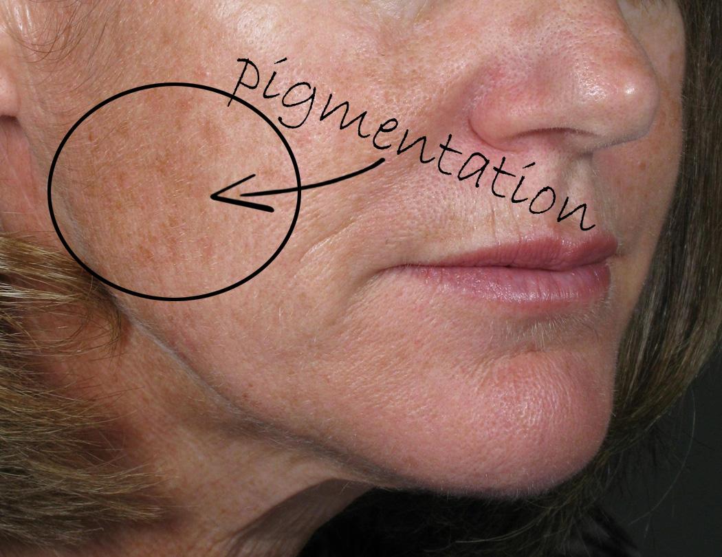 Dietrich, Judith pigmentation.jpg