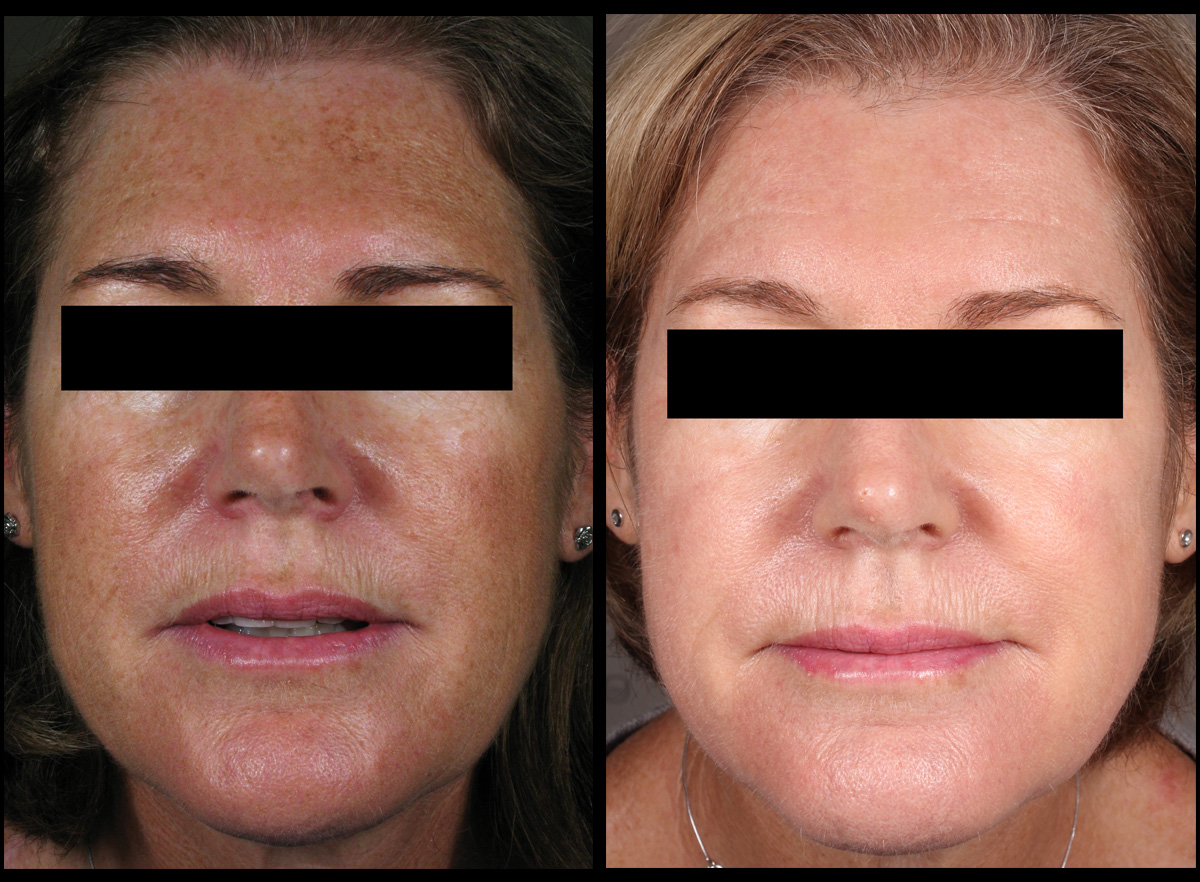 This patient was treated for sun induced pigmentation using the Fraxel laser. Treatment performed by Tara Coetzer RN.   *All results shown on our website have been achieved by our team members. Please note that results are individual and may vary.