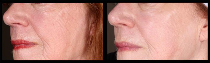 HA skin booster for cheek lines & general skin rejuvenation