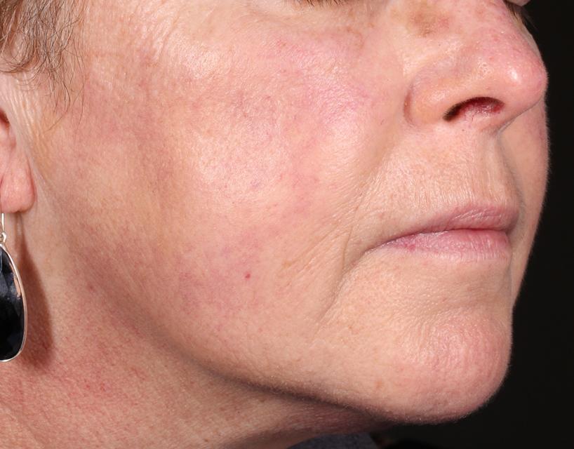 After Vascular Laser at DIV