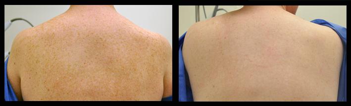 IPL for freckles on back