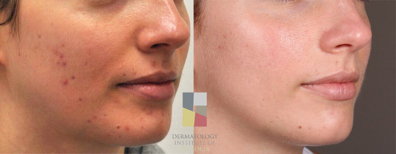 An example of an adult with  acne  that was treated at the Dermatology Institute of Victoria