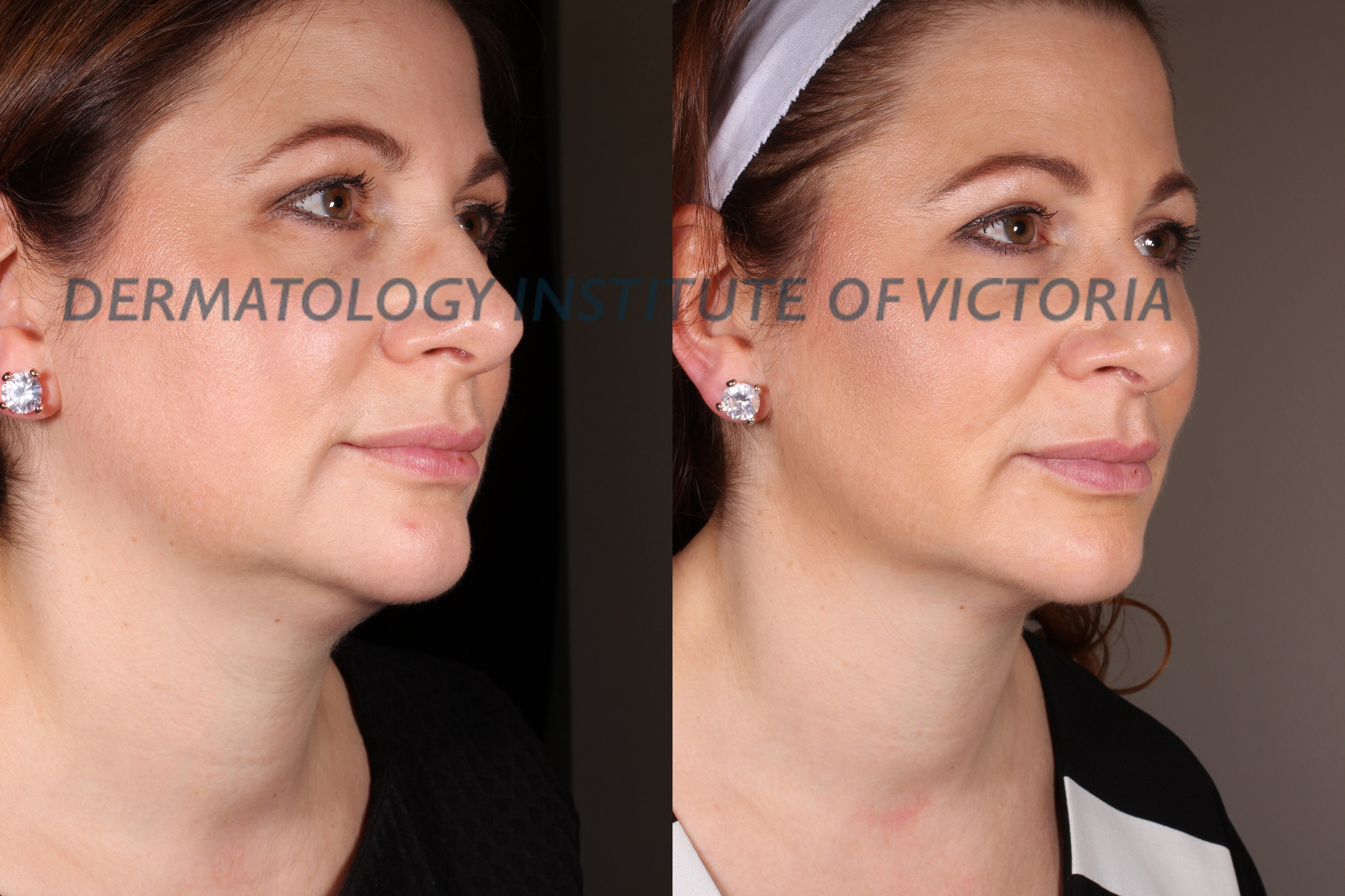 Before (left) & After (right) Ultraformer treatment to the jawline at The Dermatology Institute of Victoria. Results achieved by Nurse Practitioner Katy Wallace RN.