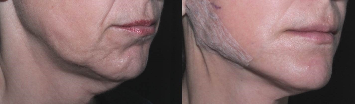 Before and immediately after suture lift performed by Associate Professor Greg Goodman