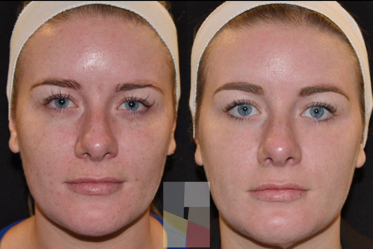 Before & After Fraxel Treatment at The Dermatology Institute of Victoria