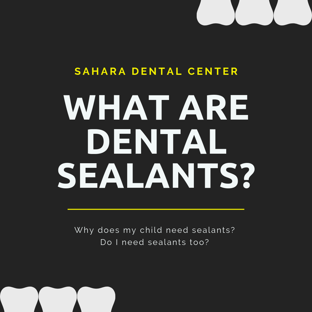 Sealants.png