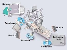 Robotic assisted laparoscopy operation